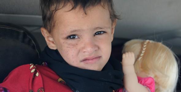Yemen: Three-year-old Hayat walks out of rehabilitation centre