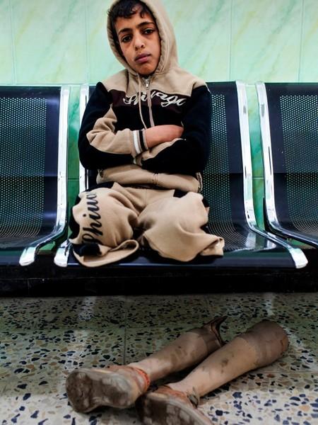 נג'ף, עיראק. בינואר 2006, כאשר סג'אד פאלח היה בן ארבע, הוא ושלושה מאחיו נתקלו בפצצת מצרר שלא התפוצצה. הם החלו לשחק אתה, והיא התפוצצה. כתוצאה מכך, נהרגו שני אחיו המבוגרים יותר של סג'אד, ונקרעה בטנו של אחיו הצעיר ממנו; סג'אד איבד את שתי רגליו. כאן הוא ממתין לבדיקה במרכז לשיקום פיזי של ה-ICRC. Getty Images/ICRC/Marco Di Lauro