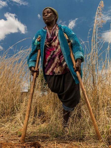 באריו שוּז'ו, מוזמביק. ליקינה גימו קארישה, בת 65, איבדה את רגל ימין מעל הברך מהתפוצצות מוקש נגד אדם ב-1987, שלוש שנים אחרי שבעלה נהרג ממוקש. ליקינה, החיה בעוני, איבדה תשעה מבין אחד עשר ילדיה בעקבות חולי ומחלות. Getty Images/ICRC/Brent Stirton