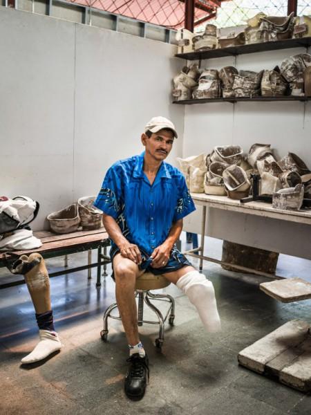 מנגואה, ניקרגואה. קרלוס חוזה פיקאדו, בן 52, איבד את רגלו הימנית ממוקש נגד אדם במהלך הסכסוך של 1981-1990בניקרגואה שבו השתתף. הוא חי עם אשתו ובתו בפרוור של מנגואה, ועובד כמאבטח בבית חולים בעיר. Getty Images/ICRC/Sebastian Liste