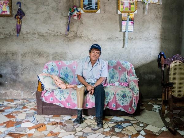 מנגואה, ניקרגואה. בּניטו ריבאס וילאלובּוס, בן 49, עבד את אדמתו כאשר עלה על מוקש נגד אדם ב-1989 ואיבד את רגלו השמאלית. הוא חי עם אשתו וחמשת ילדיו בסומוטיו, וממשיך לעבד את אדמתו. מאחר שהרכיב את אותה תותבת כבר חמש שנים, הוא בא לבית החולים השיקומי אלדו צ'בריה במנגואה להתאמת תותבת חדשה. Getty Images/ICRC/Sebastian Liste