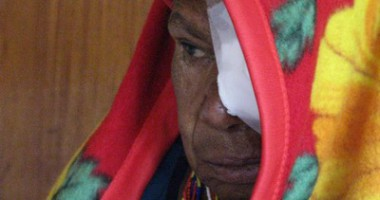 Pemeriksaan Mata dan Operasi Katarak Gratis Bagi Masyarakat di Kota Mulia