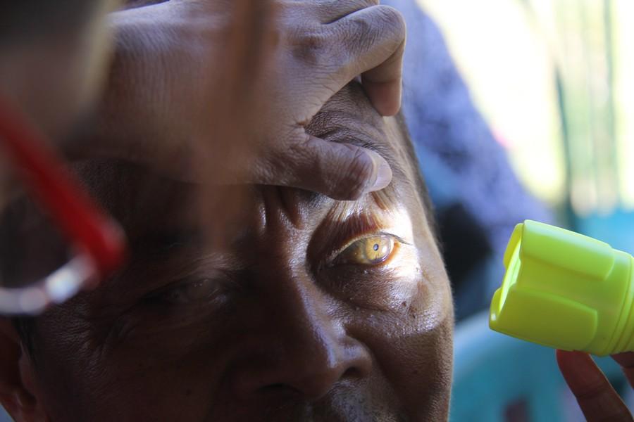 Salah satu pasien diperiksa mata oleh Dokter Elna S. Anakotta, Spm, dokter spesialis mata dari Ambon, sebelum mengikuti pemeriksaan lebih lanjut. ©ICRC/Mia Pitria