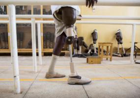 Replacing Lost Limbs: Physically, Mentally, Virtually