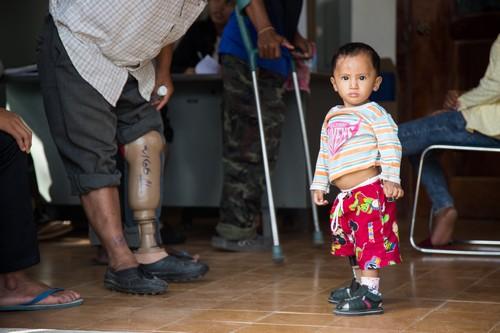 ผู้ป่วยเด็กกำลังรอรับบริการที่ศูนย์ฟื้นฟูทางกายภาพของจังหวัดพระตะบอง