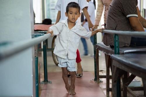 ผู้ป่วยเด็กที่มาเข้ารับการรักษาที่ศูนย์ฟื้นฟูทางกายภาพกำลังมุ่งมั่นก้าวเดินไปข้างหน้า